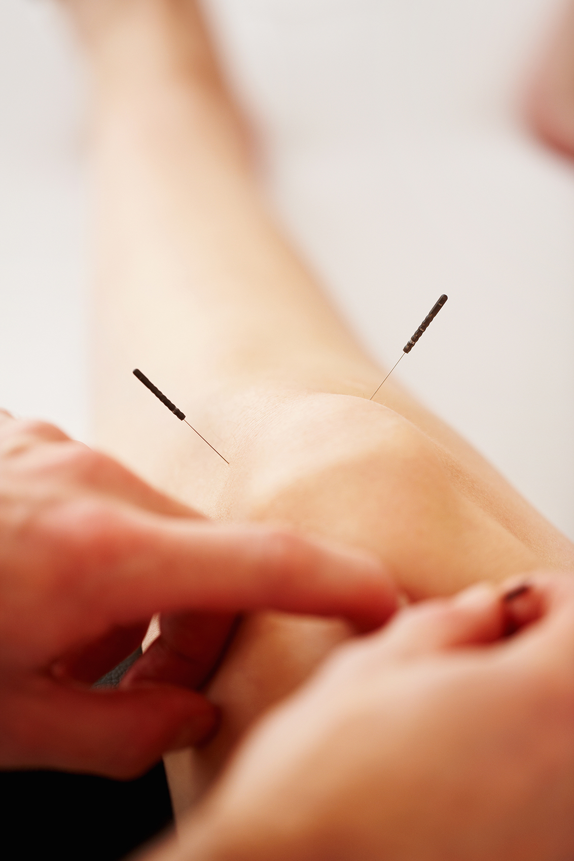 Acupuncture treatment on knee