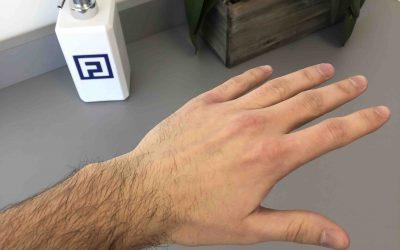 "Q&A: ""Can I Stop Wearing My Wrist Brace?"""